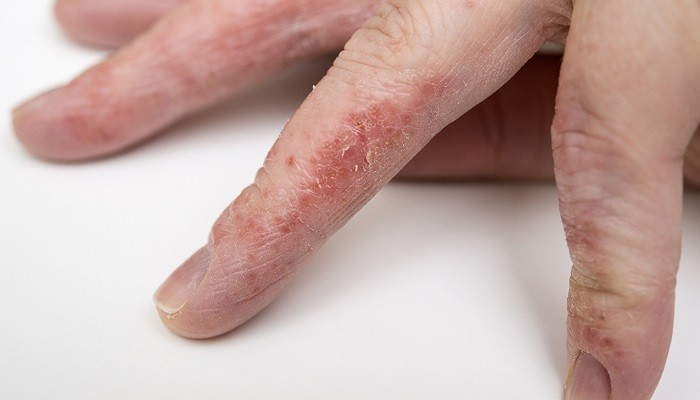 عوارض پوستی شوینده ها