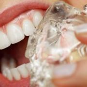 عادت های بد که دندان ها را خراب می کند