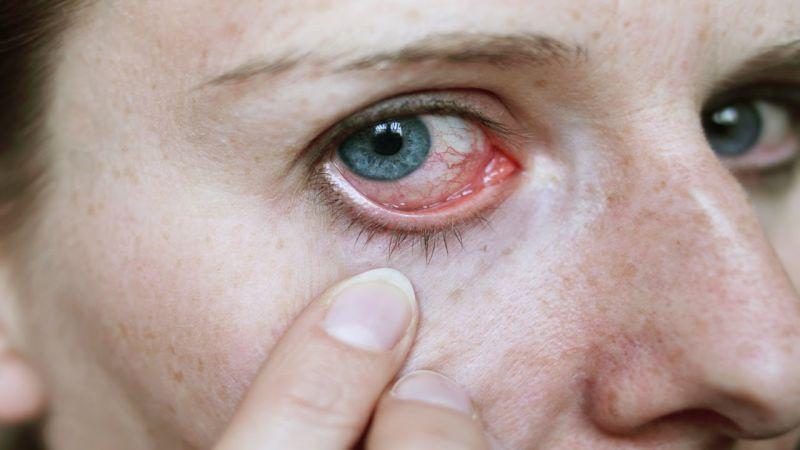 عوارض چشمی شوینده ها