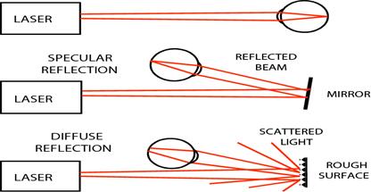 انواع حالاتی که سیستم بینایی در معرض پرتو لیزر قرار میگیرد