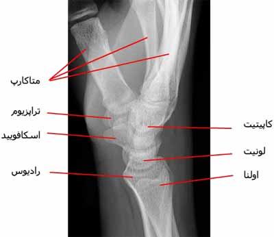 رادیوگرافی نیمرخ مچ دست