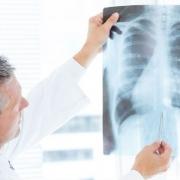 آزبستوز (علل، علائم، پیشگیری و درمان)