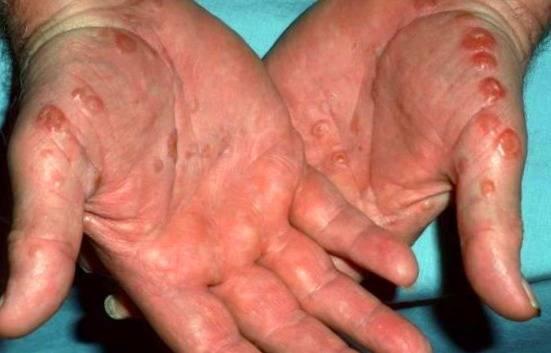 آیا اگزما انواع مختلفی دارد و عوامل و فاکتورهای خطر آن