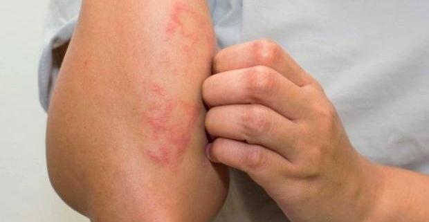 اگزما (eczema) چیست؟
