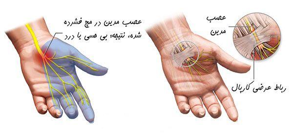 عوامل بوجود آورنده سندروم تونل کارپال
