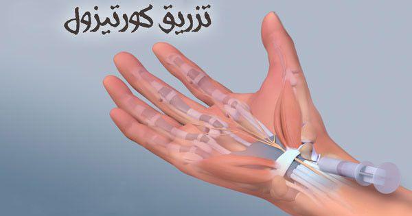 درمان های تهاجمی برای سندروم تونل کارپال