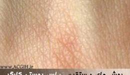 روش های مستقیم تماس پوستی کارگر