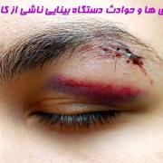 بیماری ها و حوادث دستگاه بینایی ناشی از کار