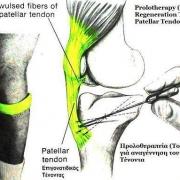 آسیب های ناشی از حرکات تکراری RMI
