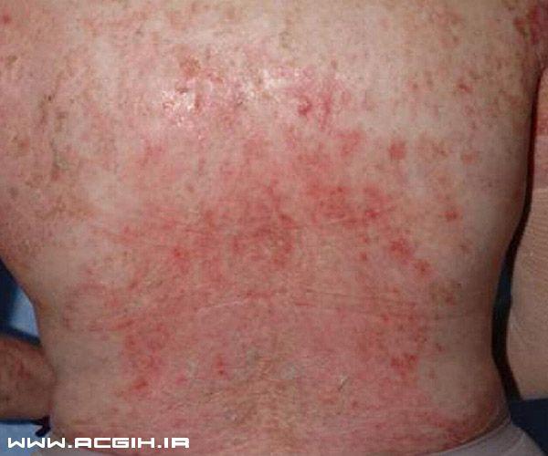 بیماری های پوستی ساختمان