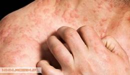 پنومونی های آلرژیک خارجی یا برون زا ( extrinsic)