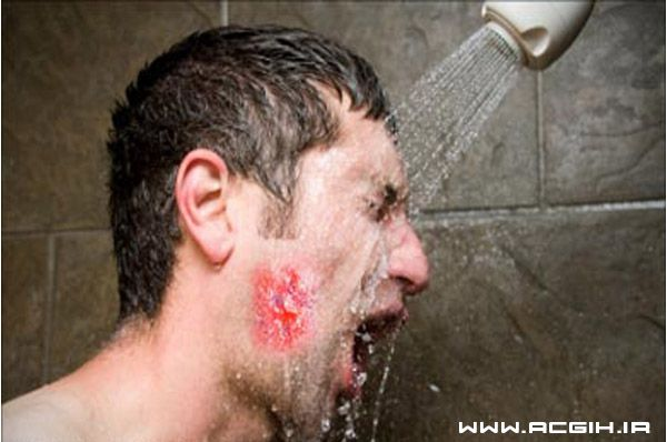 آسیب های چشم ناشی از سوختگی با مواد شیمیایی