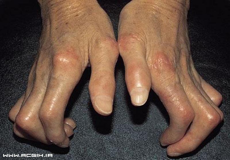 systemic sclerosis بیماری اسکروزیس