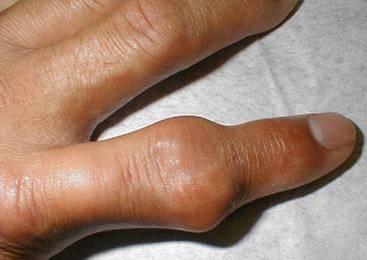 التهاب زردپی