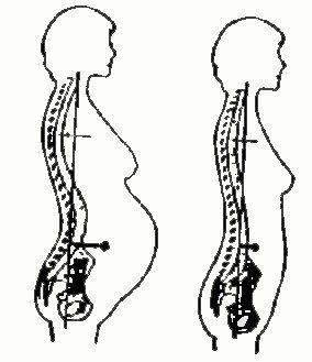 وضعیت بدن به هنگام بارداری