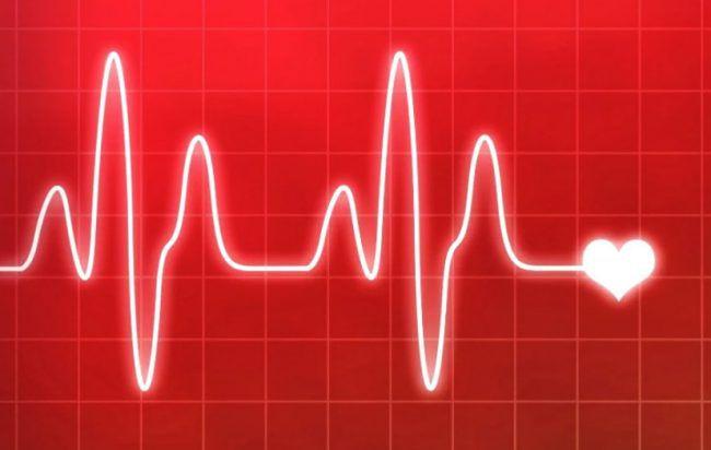 آریتمی های قلبی
