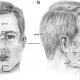 کاربرد نرم افزار آنالیز تصویر Digimizer در آنتروپومتری سر و صورت
