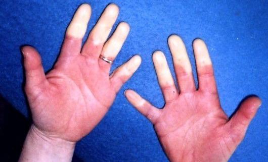 بیماریهای ناشی از ارتعاش