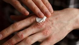 بیماری های پوستی ناشی از کار