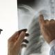 بیماری های ناشی از هوای فشرده