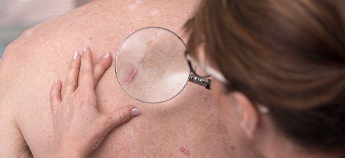 سرطان اپیتلیومای اولیه پوست