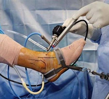 طراحی ارگونومیک دستگاه کشش دهنده پای بیمار حین عمل جراحی