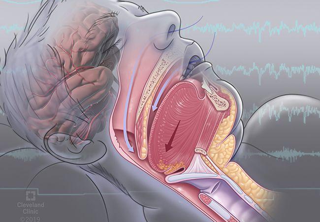 مقایسه عملکرد شناختی و خستگی در افراد مبتلا به آپنه انسدادی خواب و افراد سالم