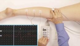 روایی همگرایی آزمون های بالینی تونوسیته عضلات اندام تحتانی با آزمون H-reflex در کودکان فلج مغزی اسپاستیک بر اساس (GMFCS)