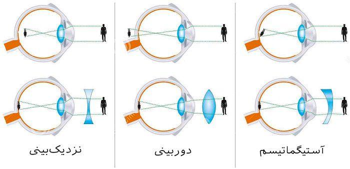 مشکلات و بیماری های چشمی با افزایش سن